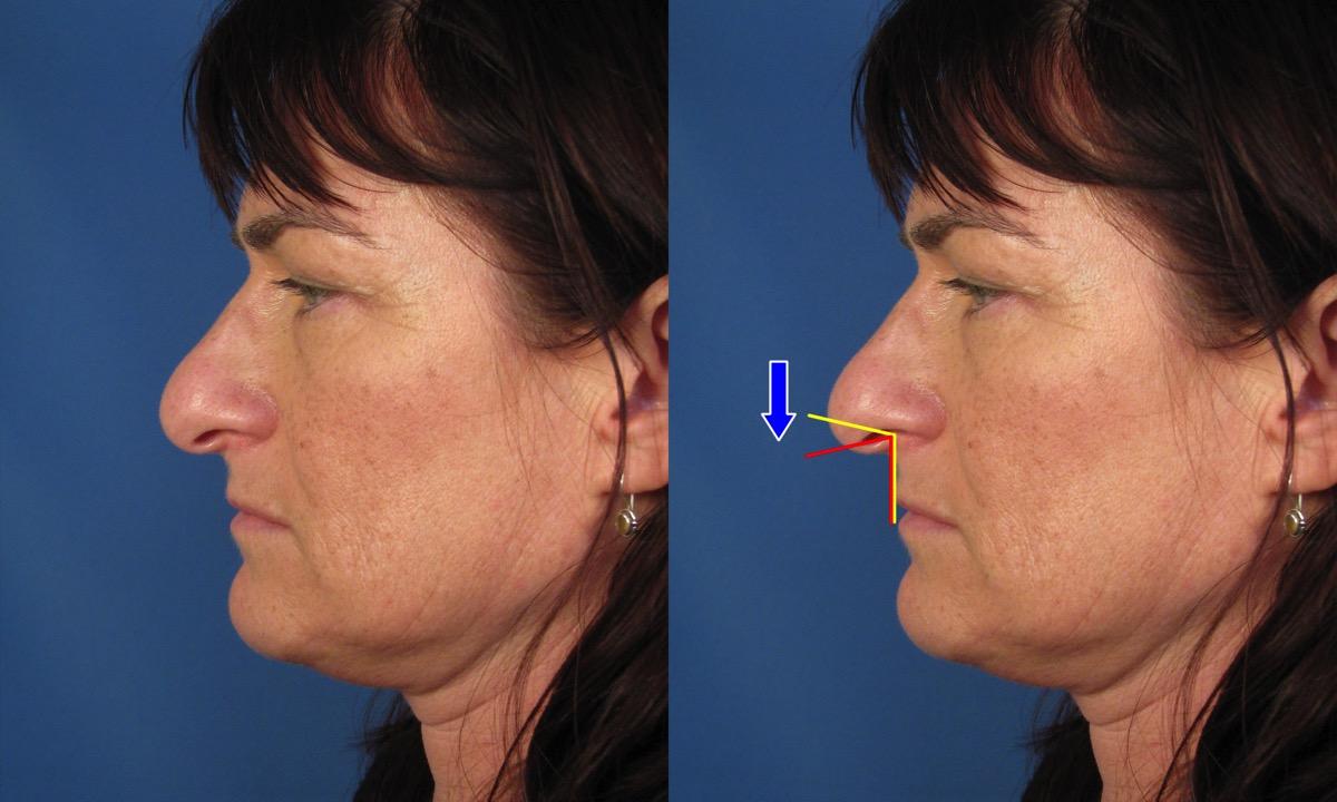 Droopy nasal tip rhinoplasty rhino260lateraldiagramg ccuart Gallery