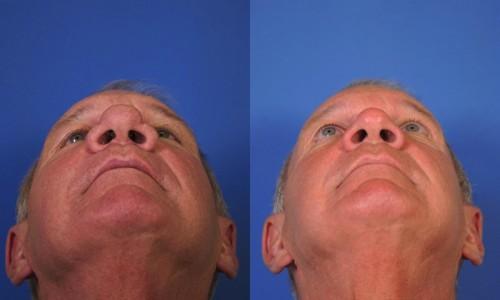 Rhinophyma Laser Treatment