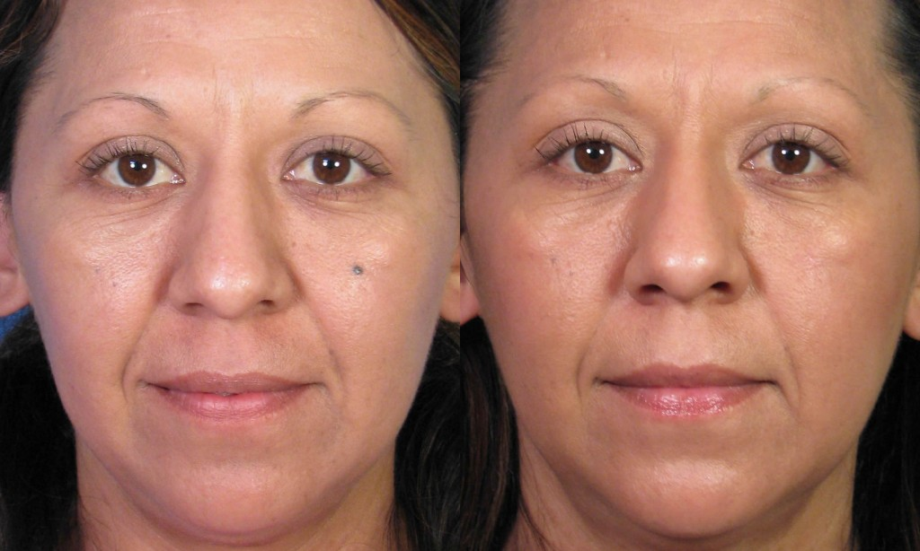 MoleExcision33FrontalBeforeAfter