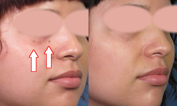 Tips for at home facial mole removal — pic 4