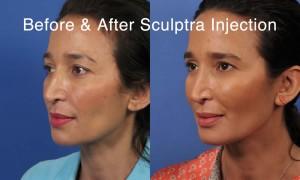 Sculptra11Facebook