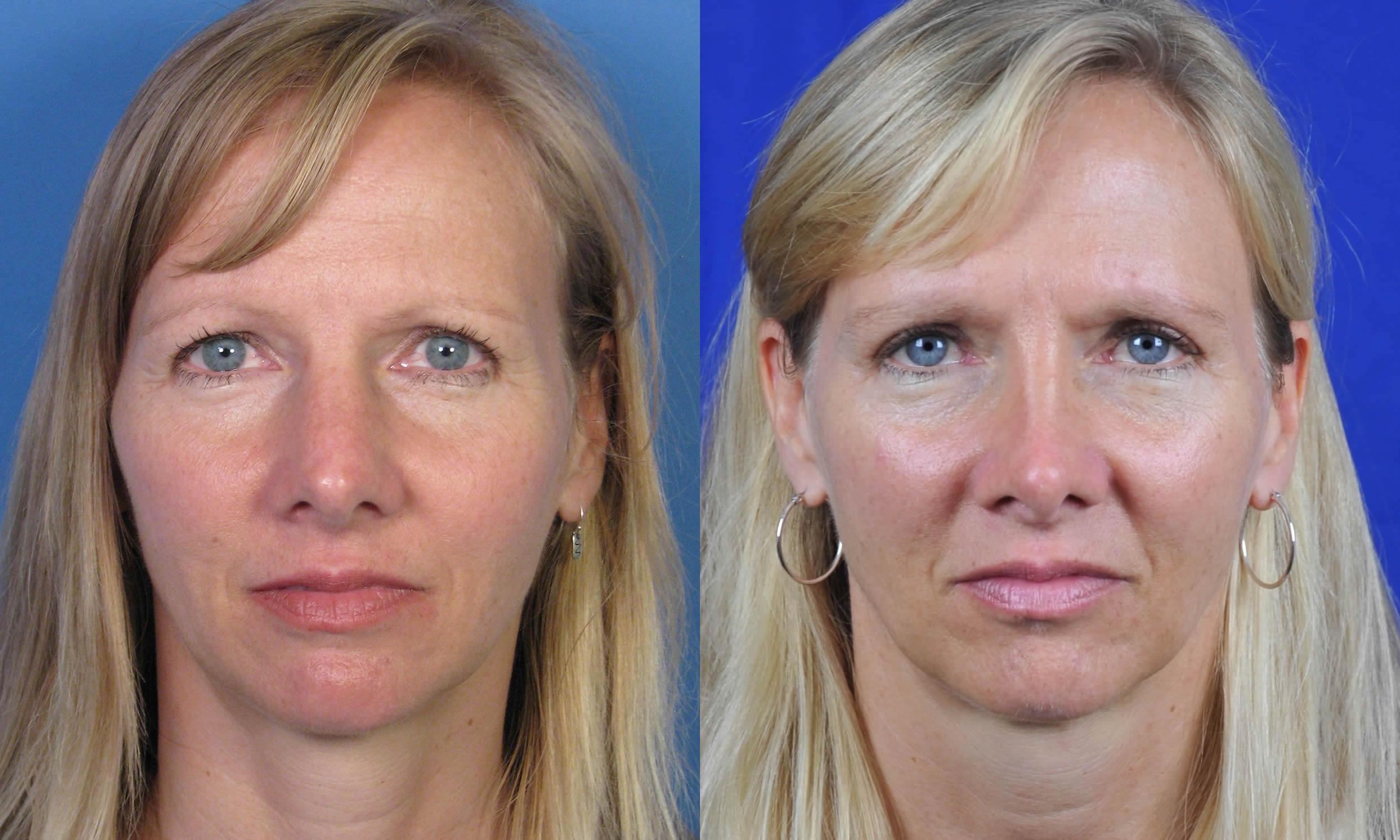 Osteotomies Narrowing A Wide Nasal Bridge