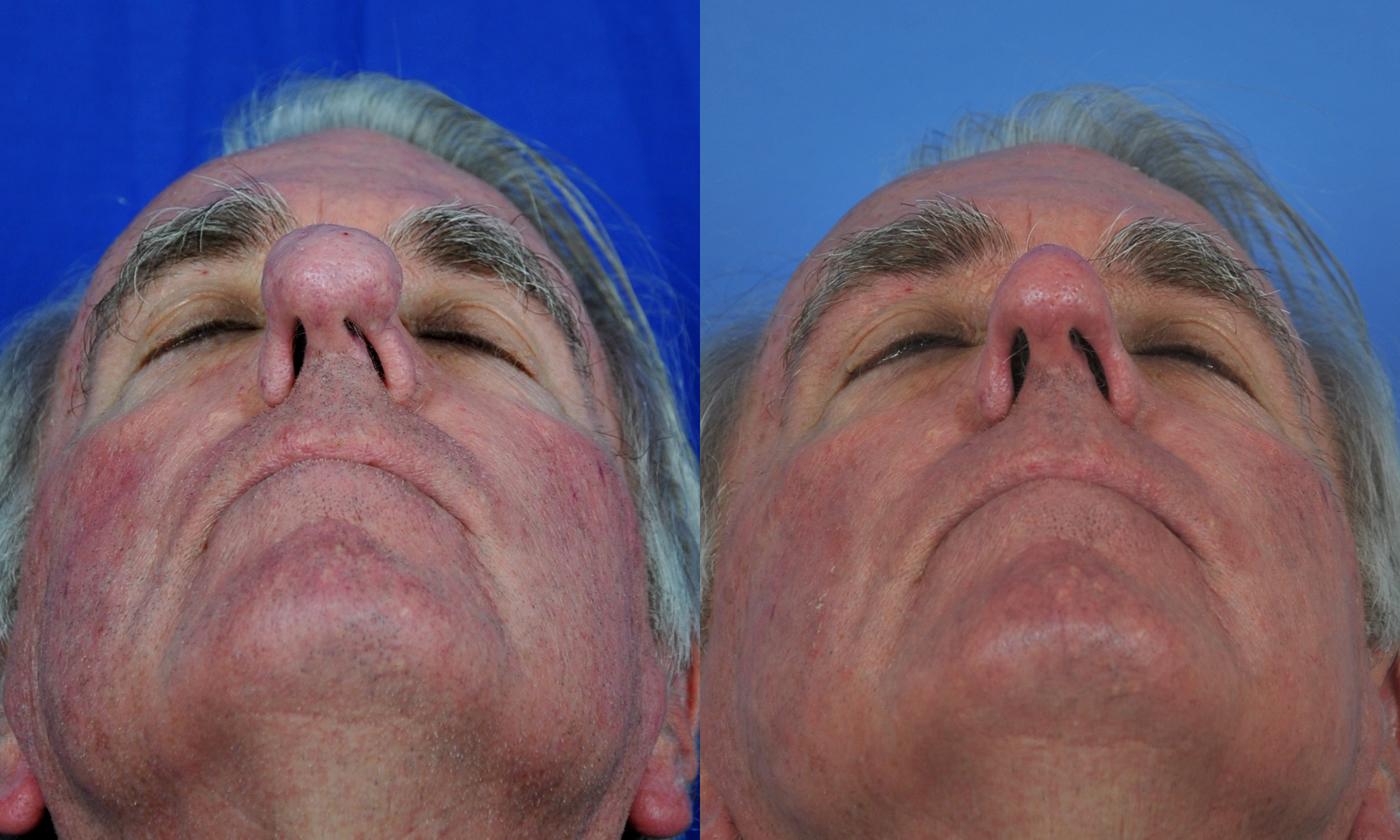 Rhinophyma Co2 Laser Treatment