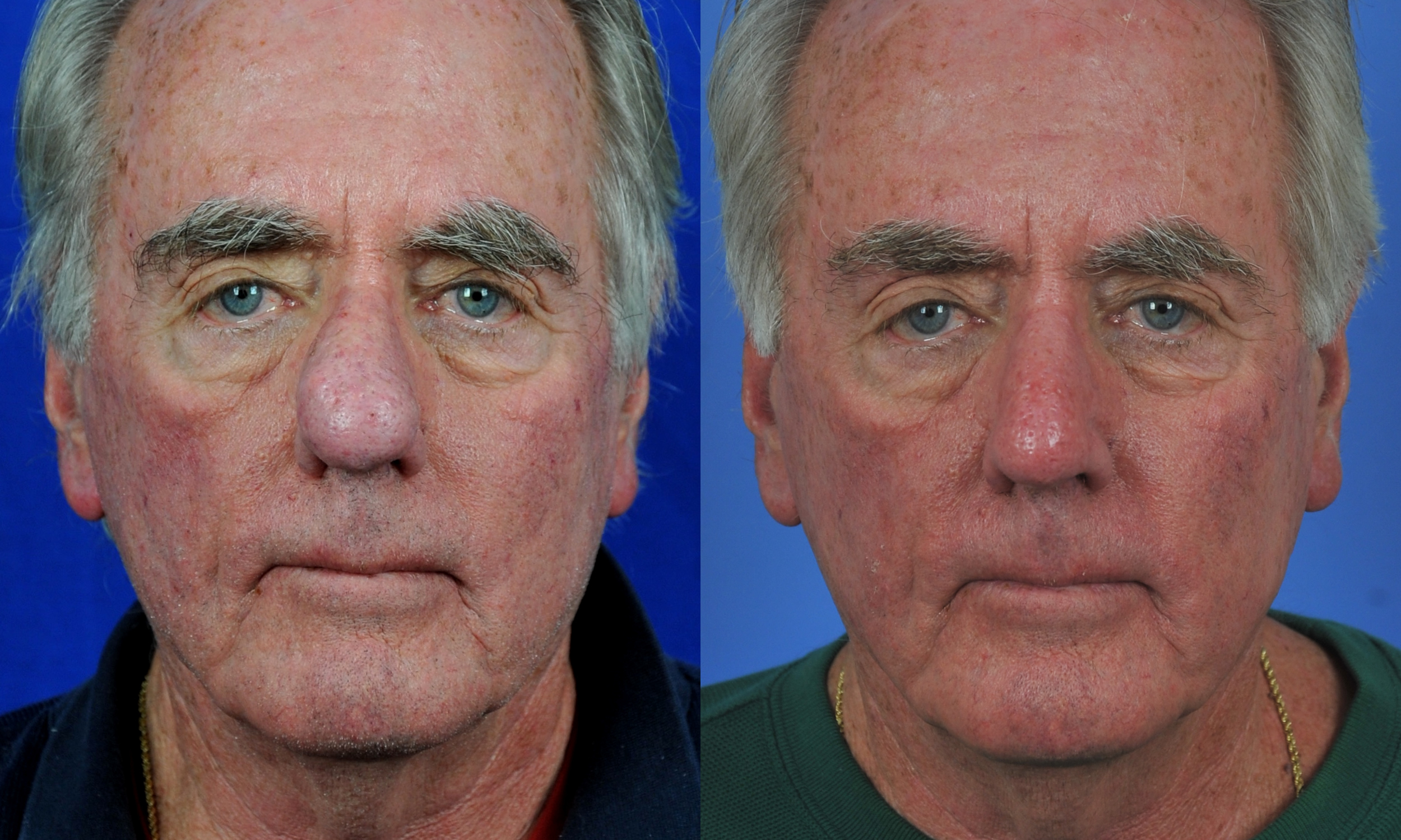 Image result for rhinophyma