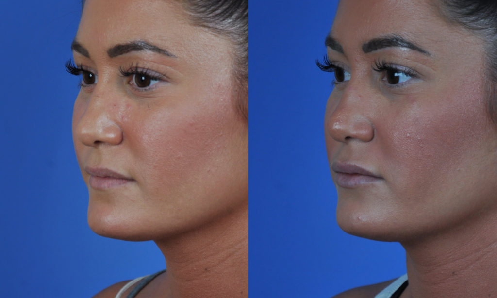 Lip Enhancement With Implants San Diego Ca