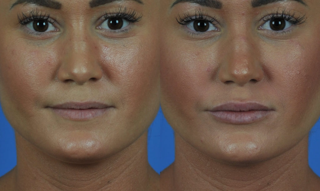 Lip Enhancement With Implants San Diego Ca