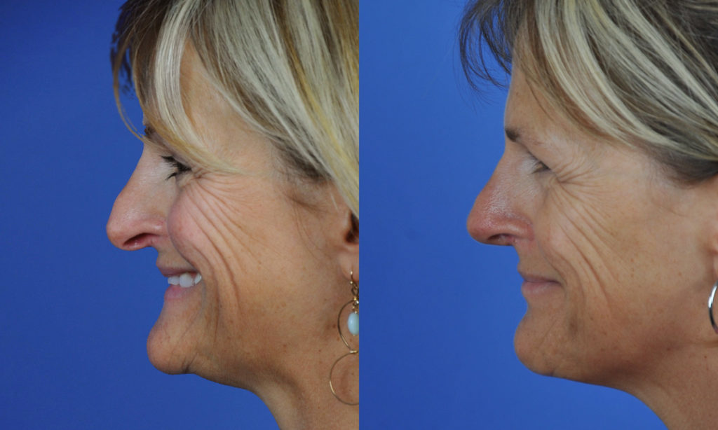 Droopy Nasal Tip Correction