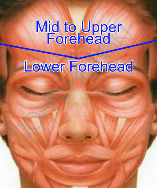 How botox affects the forehead and brows you should really think about the forehead as two opposing regions there is the lower forehead that corresponds to the eyebrows the area in between the solutioingenieria Images