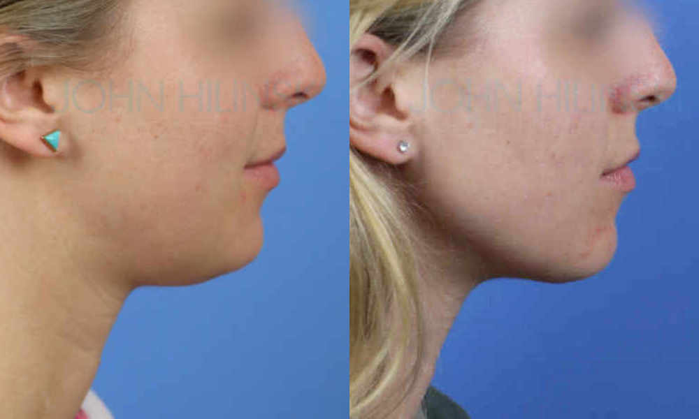 Neck Liposuction Performed In San Diego