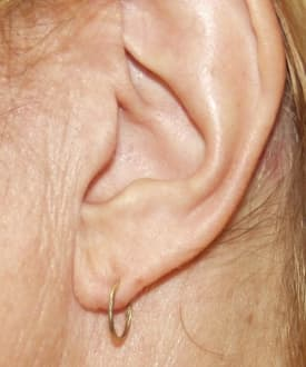 Gauge Torn Earlobe Repair San Diego Ca
