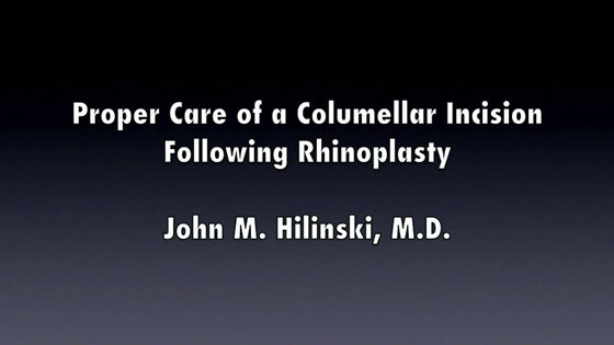 https://www.drhilinski.com/wp-content/uploads/video/RhinoplastyCleaningColumella